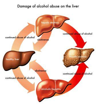 alcohol abuse on liver
