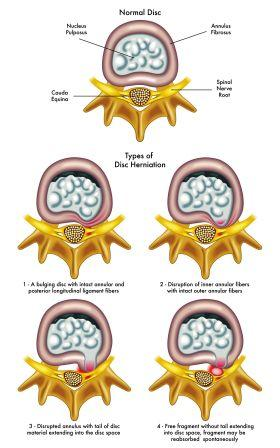 cartilage disc deneration and herniation