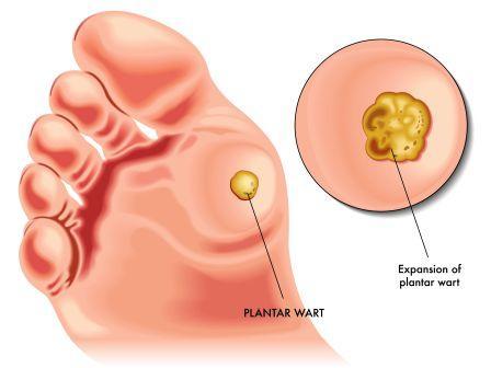 Wart treatment ayurvedic medicine. Hpv treatmentproiecte, Papilloma treatment in ayurveda