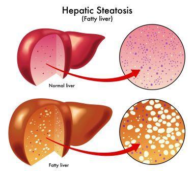 Hepatic steatosis
