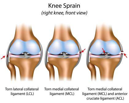 knee injury - ACL, MCL, LCL