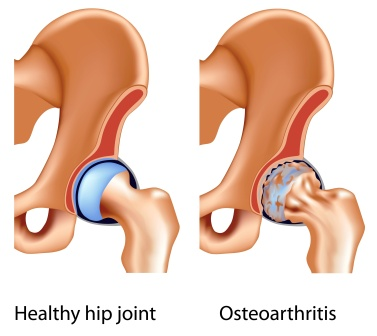 osteo arthritis of hip