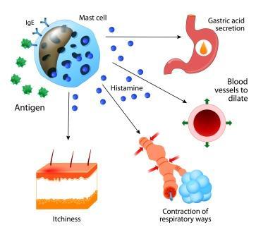 mechanism of allergy