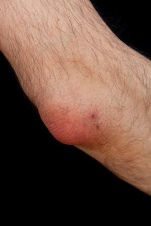 popeye elbow