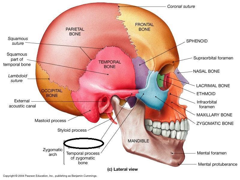 Right Occipital Fracture