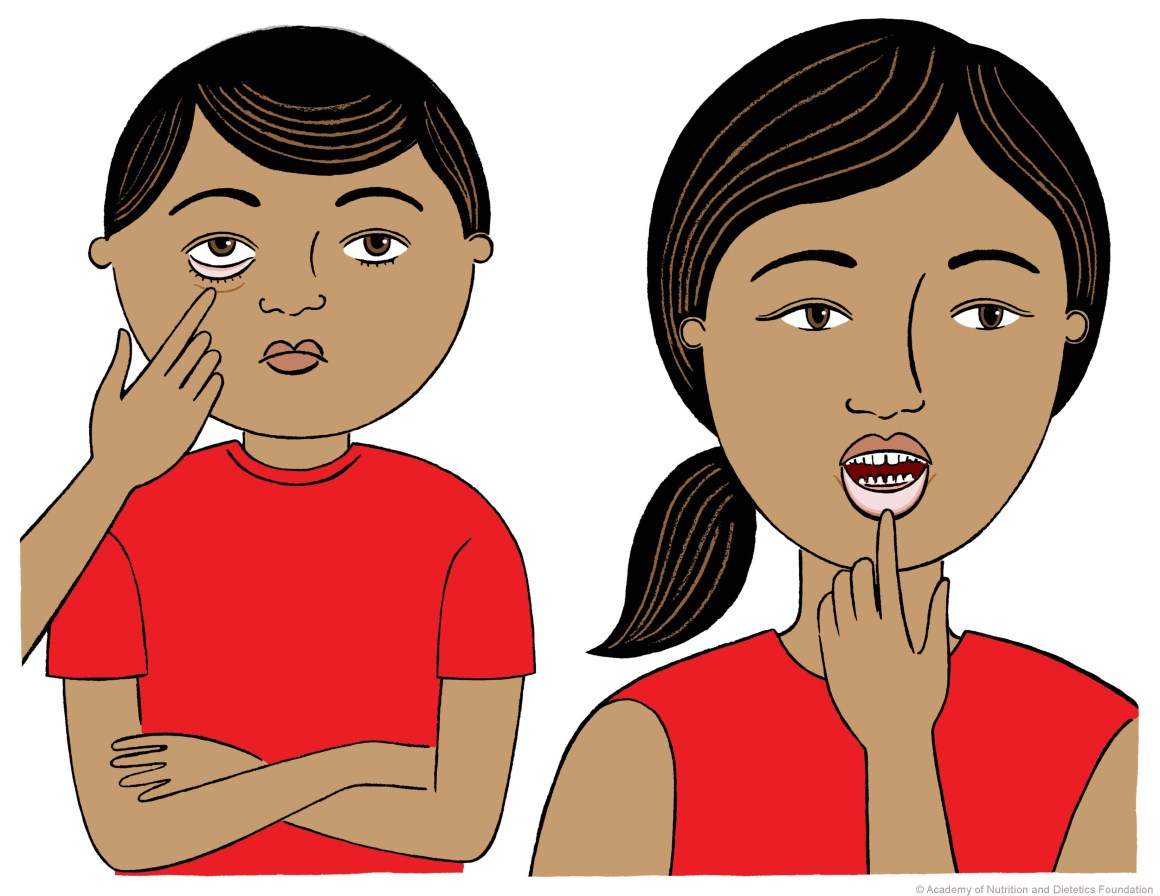 आयरन  की कमी - Iron Deficiency Anemia?
