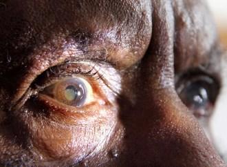 MediaMath y Seva se asocian para ayudar a personas de bajos recursos a recuperar la vista