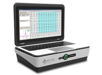 EXO presentó un GPS para el implante de marcapasos