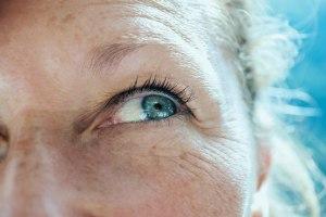 Occhio secco dopo interventi cataratta