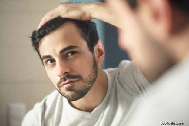 9 Things Men Can Do To Fight Hair Loss Ecellulitis Com