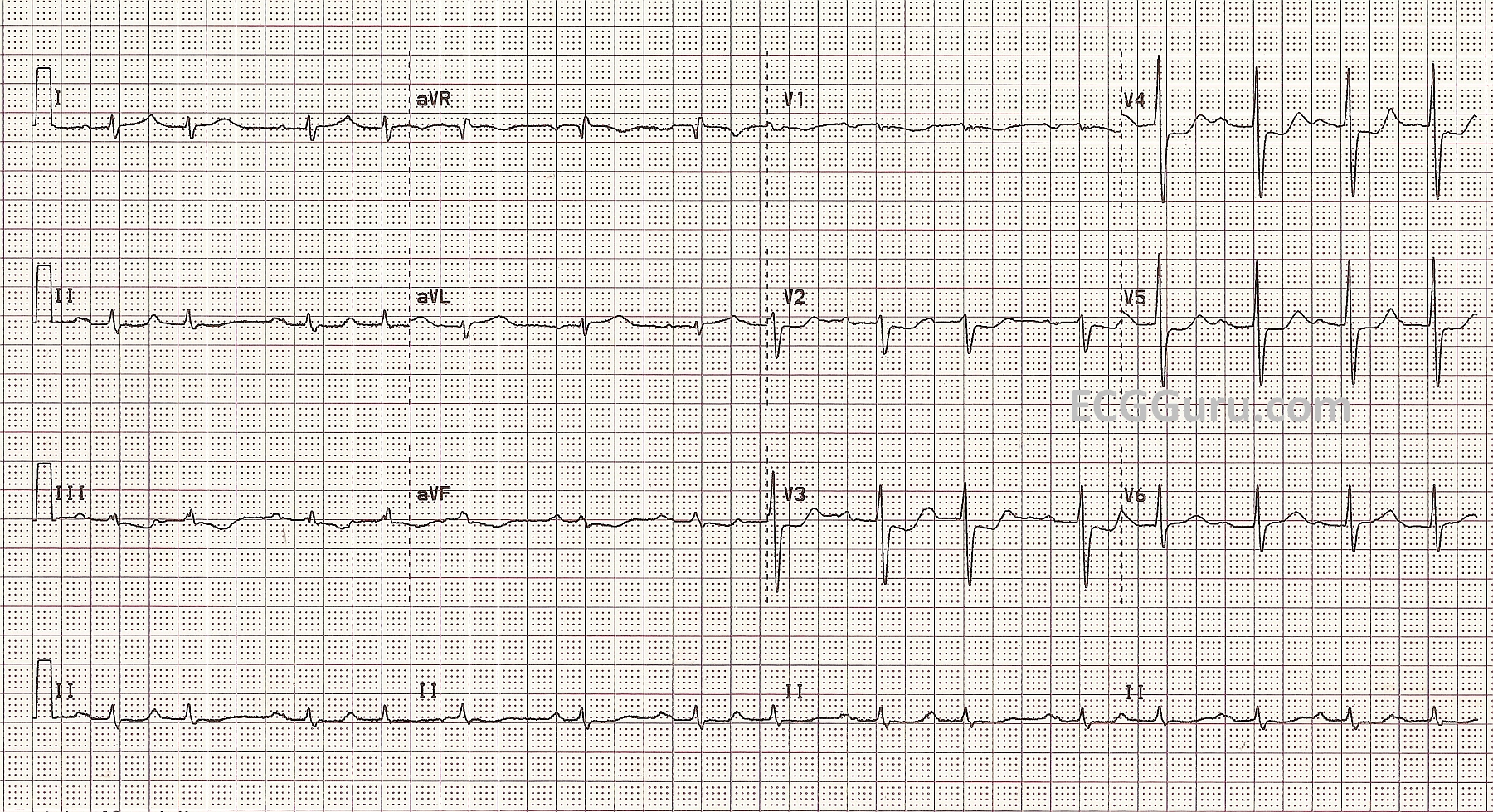 Acute M I Occluded Stents In Left Obtuse Marginal Artery Ecg Guru