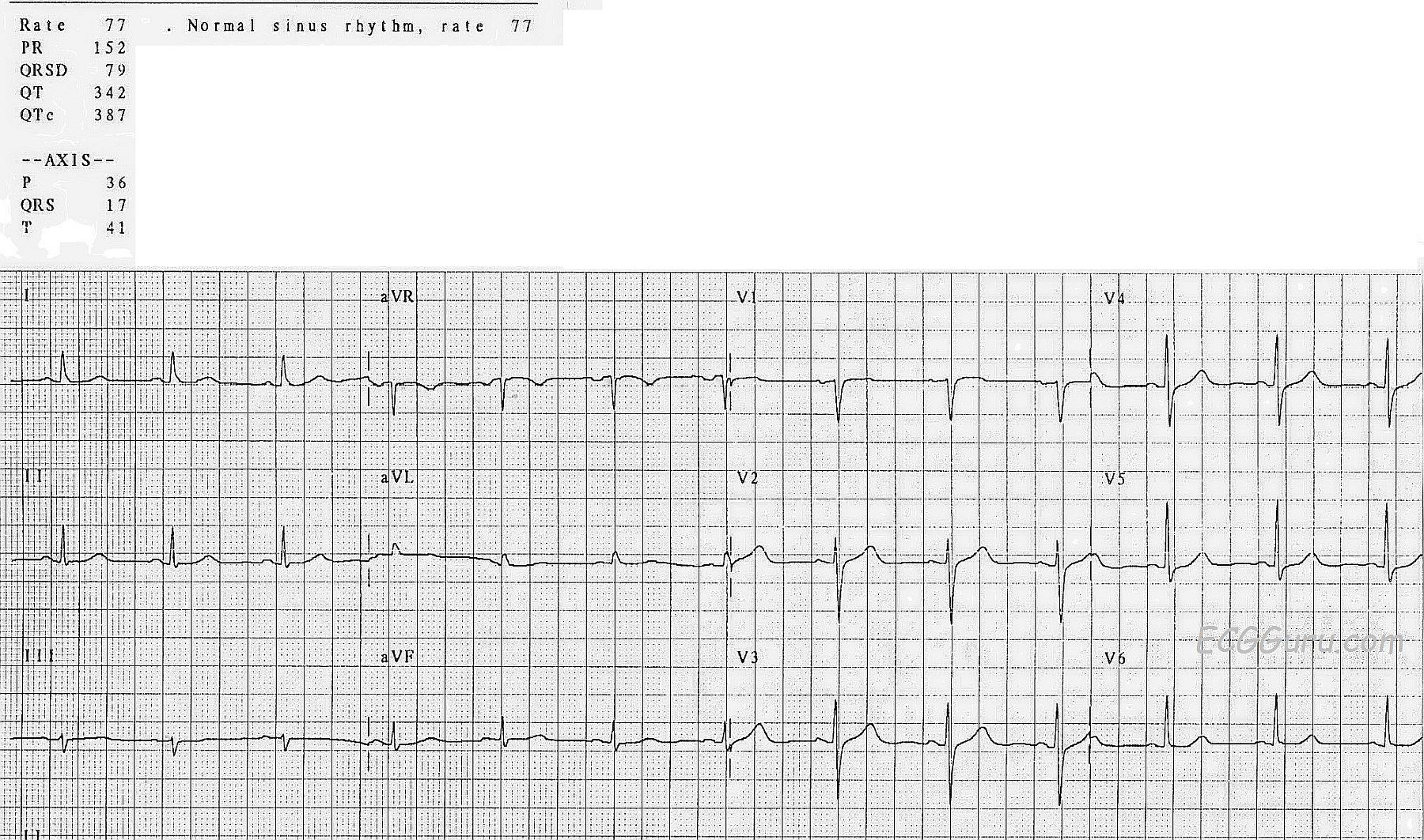 Normal 12 Lead Demonstrating Good R Wave Progression Ecg Guru
