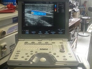 VIVIDechographe cardio face avant