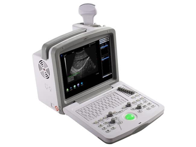 echographe wed 9618 gynecologie