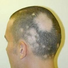 Alopecia-Areata-man6