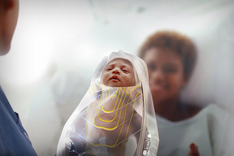 La forma en la que 'Kanga' salvará la vida de millones de bebés