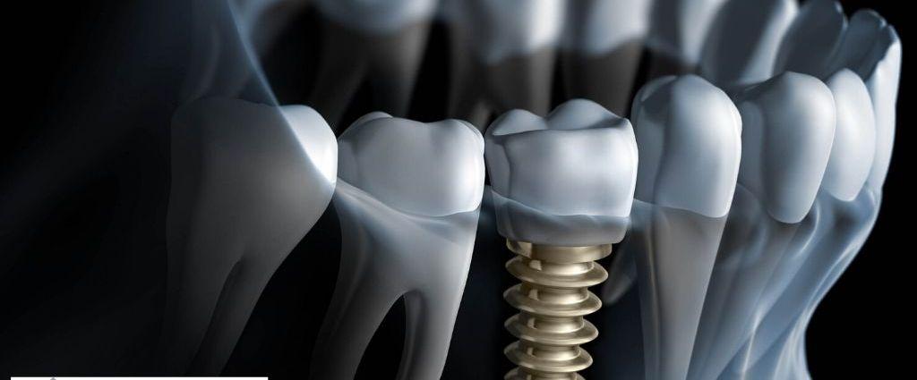 Oral Fixation Techniques