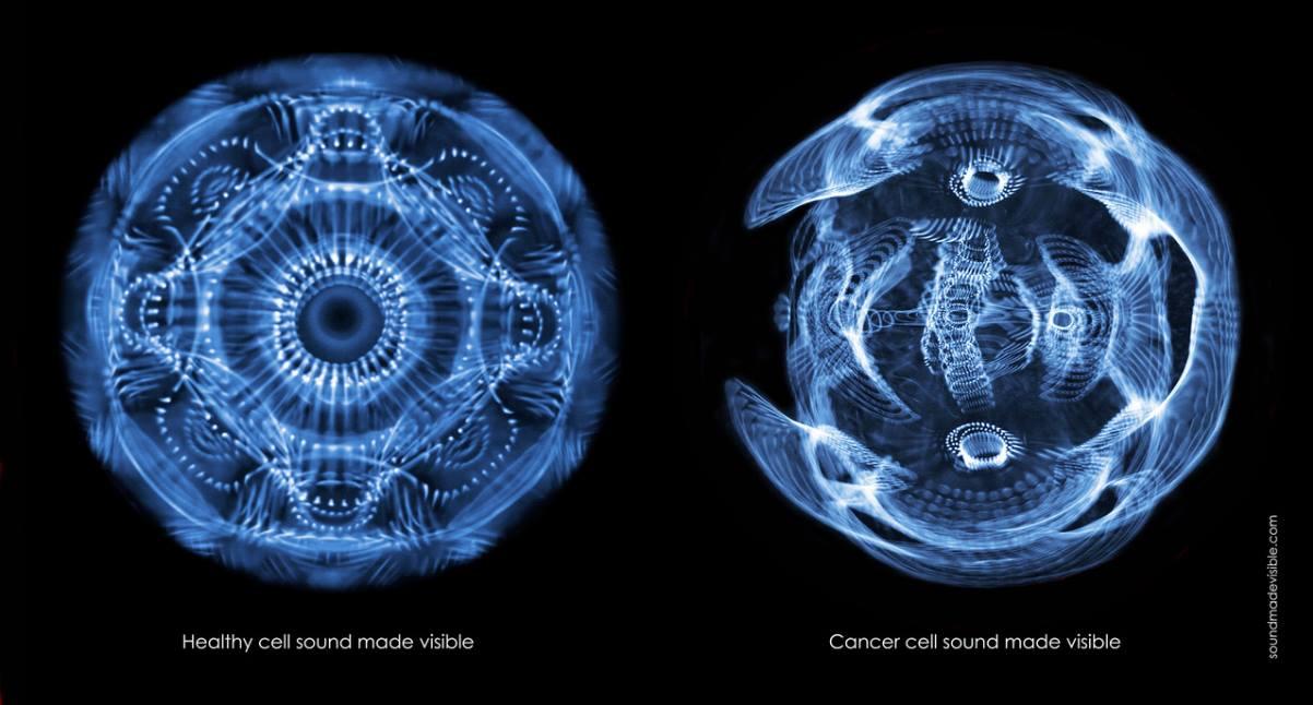L'harmonie devient cacophonie lorsque les cellules saines deviennent cancéreuses