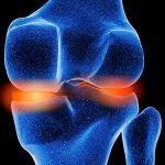 Articulación inflamada