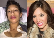 Rag and bone harrow boot celebrity plastic surgery