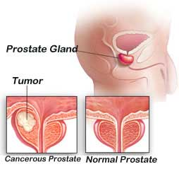 Image result for Some 90% of Ireland's prostate cancer patients alive after five years