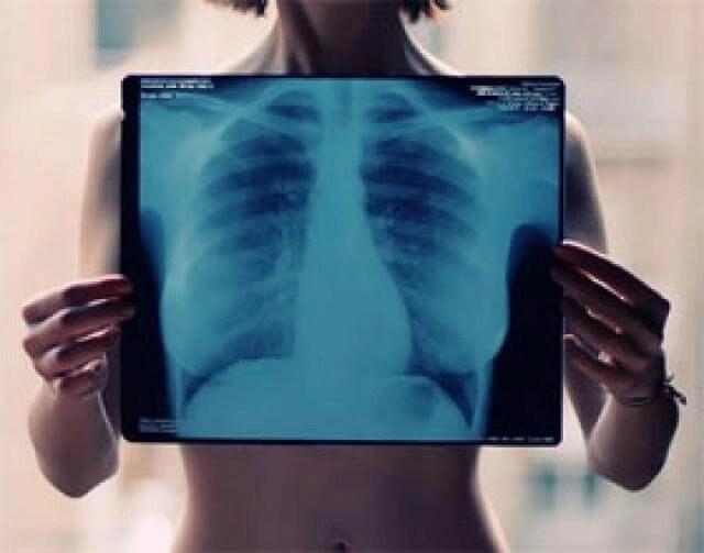 imagen de Radiografía con Rayos X de inventos y descubrimientos de educapeques. Todo lectura para niños.