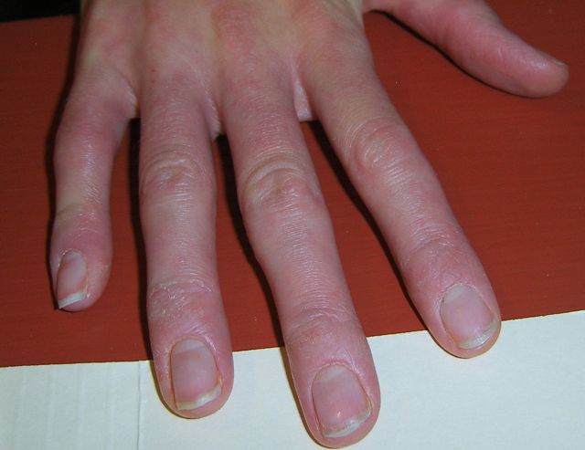 Go Back > Gallery For > Dermatitis On Hands Treatment