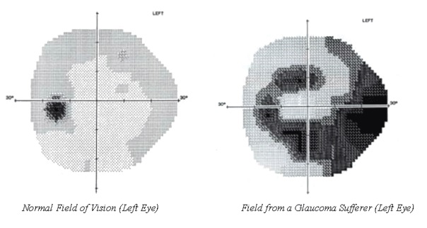 two graphics show the blind spot spreading from a small dot to occupying half the field of vision