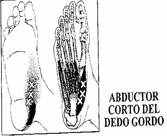 TINI ABDUCTOR PRIMER DEDO   fisioplanells