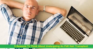 5 Reasons To Think About Undergoing An FUE Hair Transplant