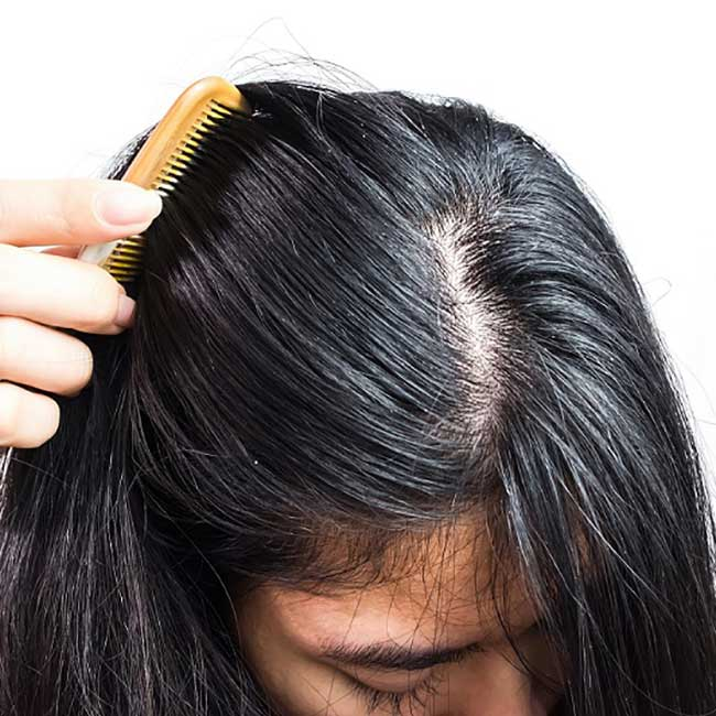 zašto se kosa masti