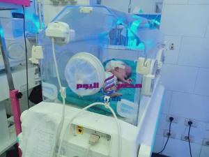 طفله عمرها 11 يوم تجري عمليه خطيره بالمخ في مستشفى فاقوس النموذجي