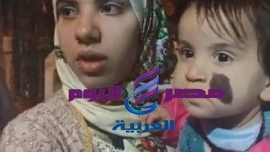جامعة المنصورة تتبني حالة « طفلة » نبروه لعرضها على فريق من المتخصصين لعلاجها