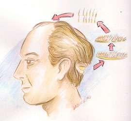 img-implante-capilar-tecnica Title category