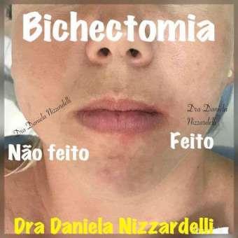 Bichectomia-Im.001-340x340 Title category