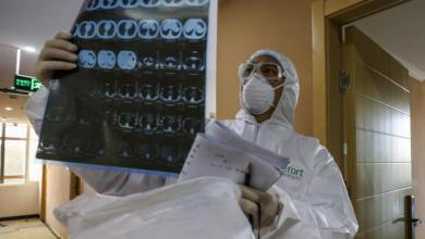 Photo of ماذا يحدث للرئتين عند الإصابة بفيروس كورونا ؟