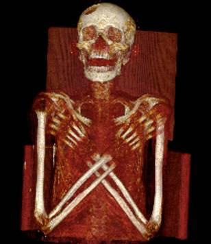 On remarque aisément  un trou assez large présent sur son crâne, au niveau de l'os frontal et de l'os pariétal (en haut à gauche du crâne sur l'image)