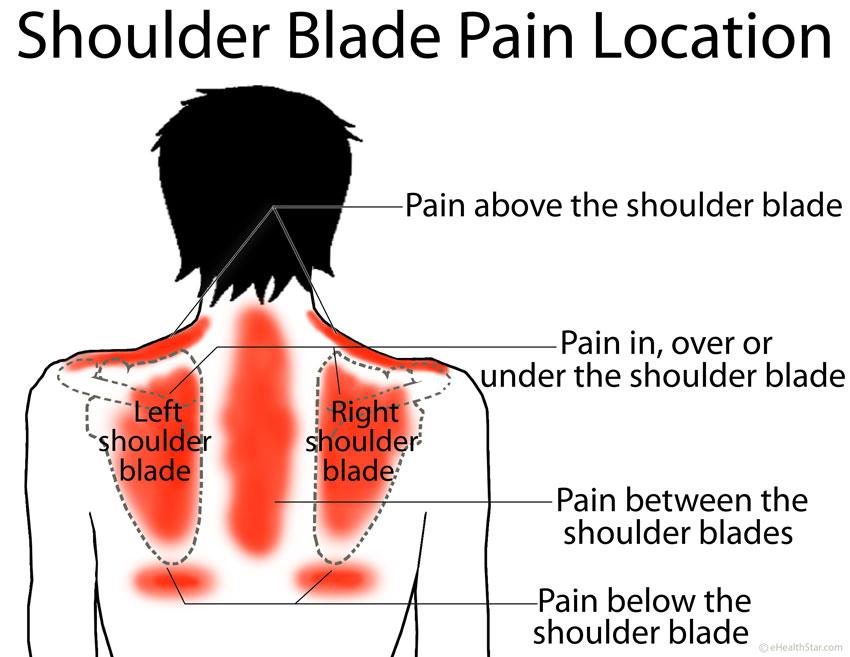 Image result for Pain Under the Shoulder Blades