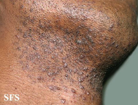 ingrown hair prevention infection scars pictures cure removal ehealthstar