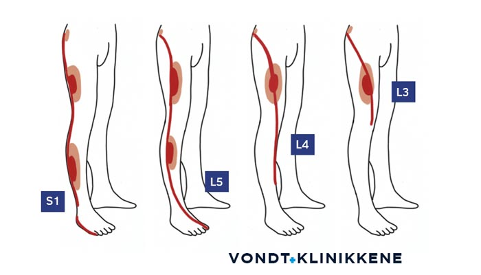 Dermatomer - Oversikt over hvordan ulike nervepåvirkninger kan gi følelseendringer i lår, bein og fot