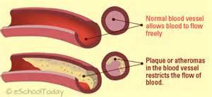 Artist's Drawing of Normal and Diseased Arteries