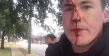 Ativista pró-vida é agredido por um homem enquanto falava do amor de Deus