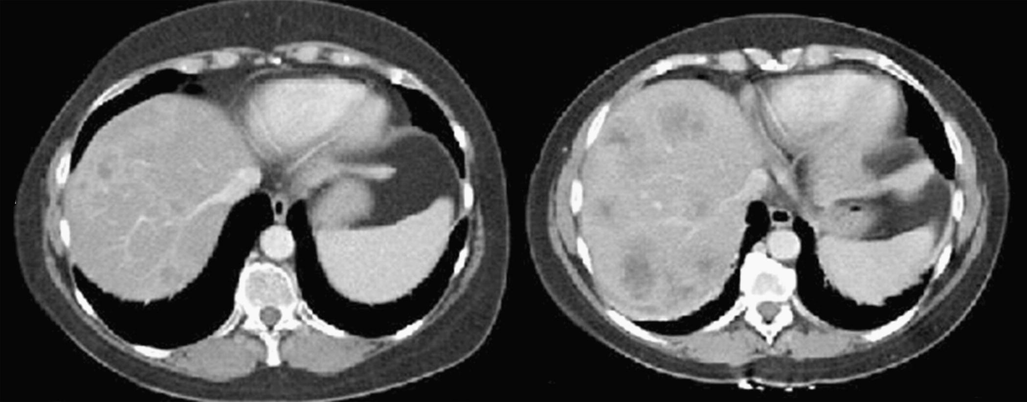 New Response Evaluation Criteria In Solid Tumours Revised