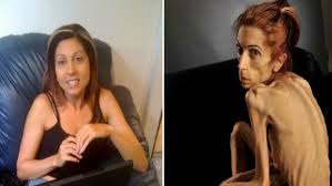 Mengenal Gejala, Penyebab Serta Cara Pengobatan Gangguan Anoreksia Nervosa