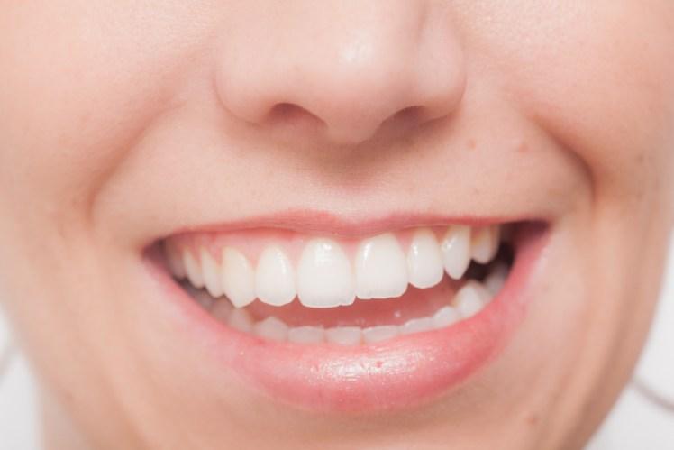 「たかが歯」なんて言えなくなる!?<br>   歯とカラダの深い関係その④ 数ミクロンのズレが全身に影響!