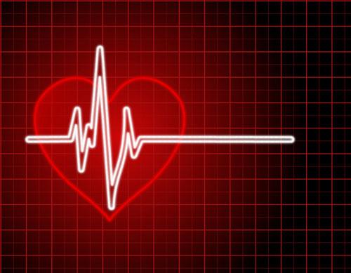 no deje que el infarto sea su maestro