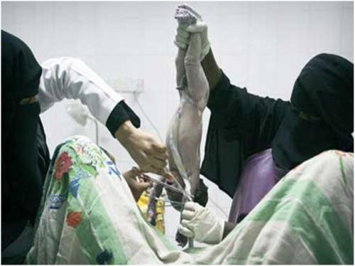 burka2 - PARIR EN AFGANISTÁN Y HAITÍ: derechos del nacimiento para todas las mujeres del mundo