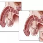 La vasectomía: Definición, Tratamientos, Efectos secundarios…
