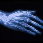 """Nuevas """"microcápsulas"""" tienen el potencial de reparar daños por la Osteoartritis"""