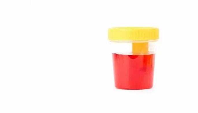 """Orina roja: ¿significa que tengo sangre en mi orina y tengo un problema de riñón"""""""